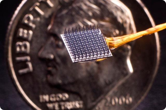implant-cerveau_thumb.jpg