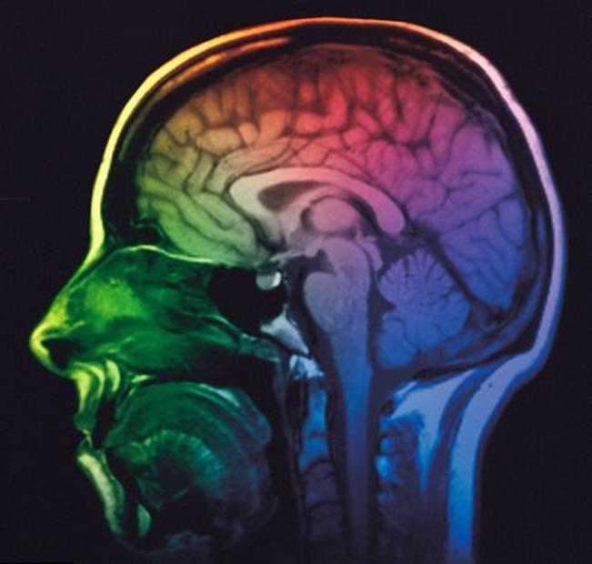 IRM-Cerveau.jpg