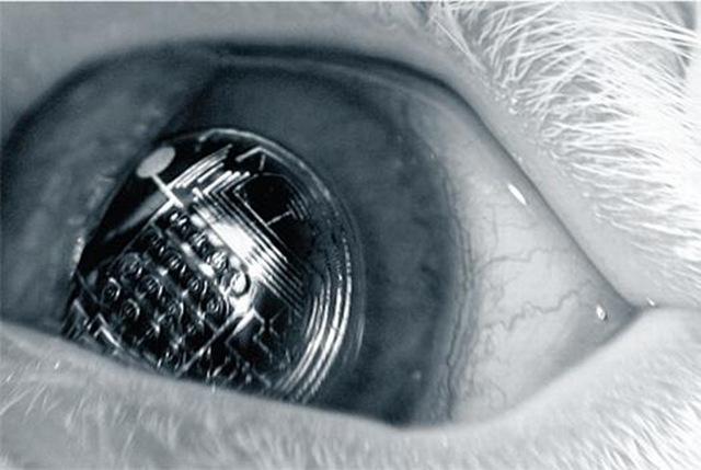 lentille-electro_thumb.jpg