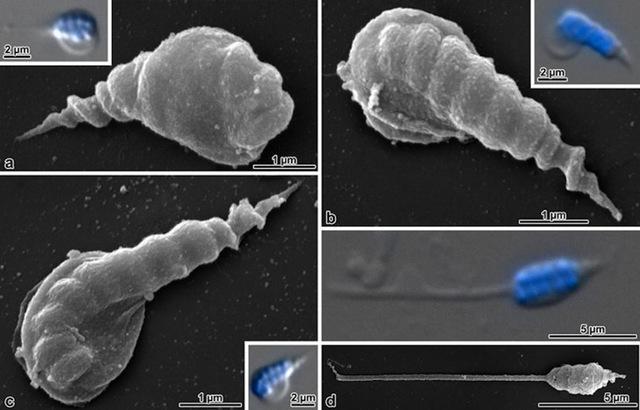 Acerentomon microrhinus-sperm
