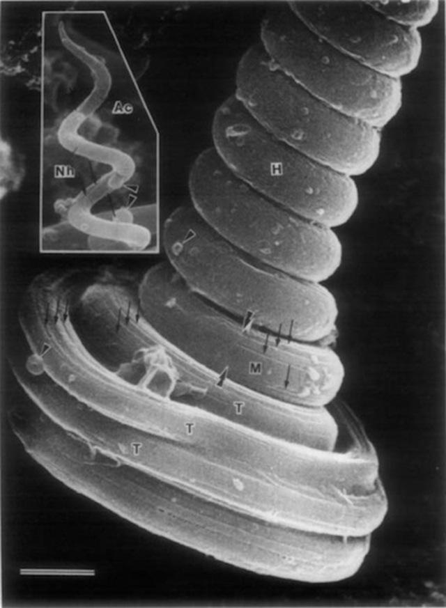 Rhacophorus arboreus-sperm
