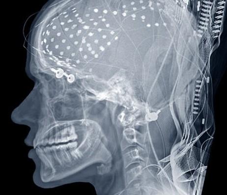 Un programme de lecture des pensées traduit l'activité du cerveau en mots. (Vidéo)