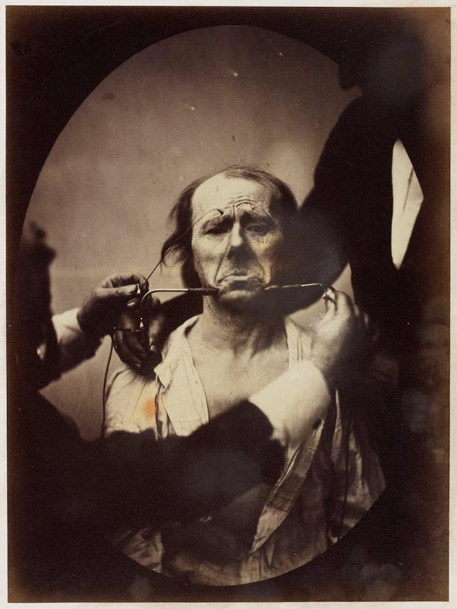 émotion visage-Darwin6