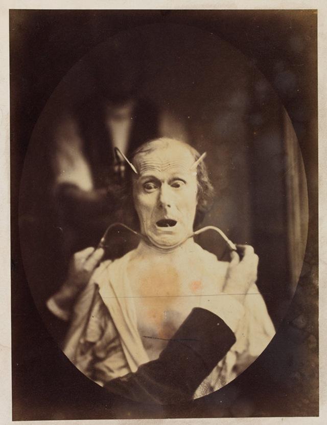 émotion visage-Darwin8
