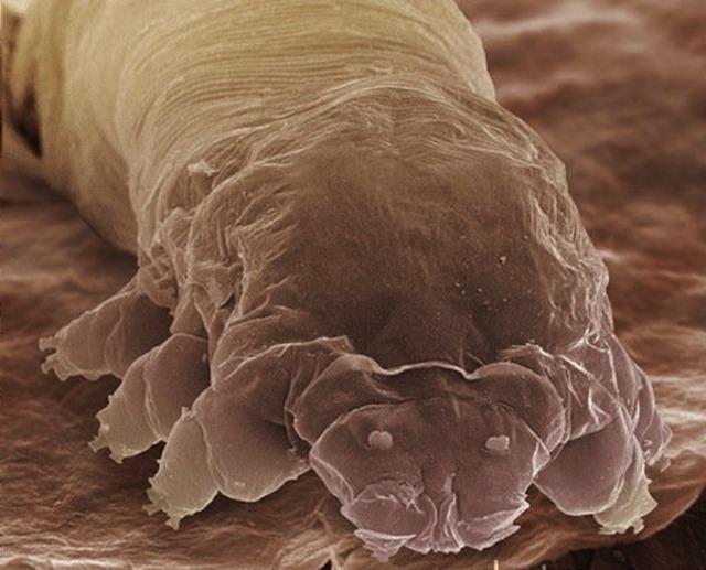 Voici Demodex Folliculorum, il crapahute sur votre visage et ses excréments provoqueraient la couperose.