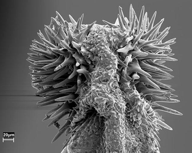penis-Callosobruchus-maculatus1_thumb.jpg