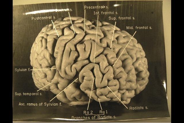 Einstein_cerveau-lateral-droite