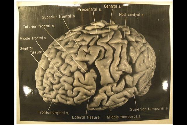 Einstein_cerveau-latéral-gauche