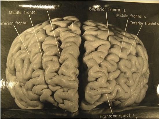 Einstein_frontal_cerveau_thumb.jpg