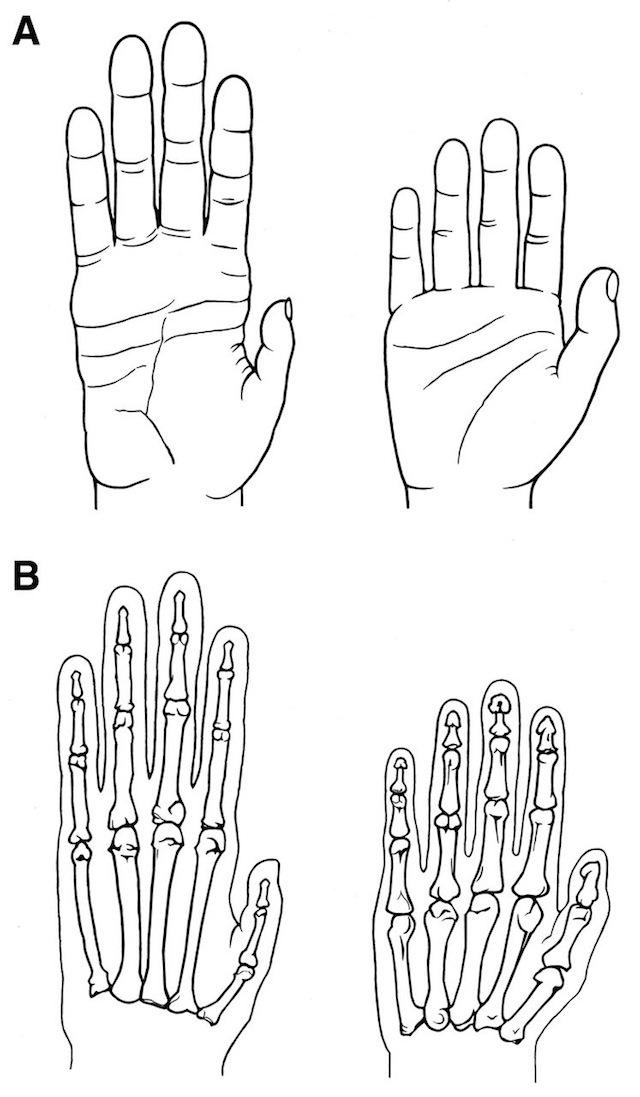 Comparaison-main-homme-chimpanzé