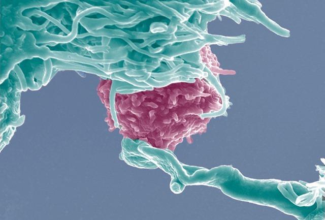 Lymphocyte T1