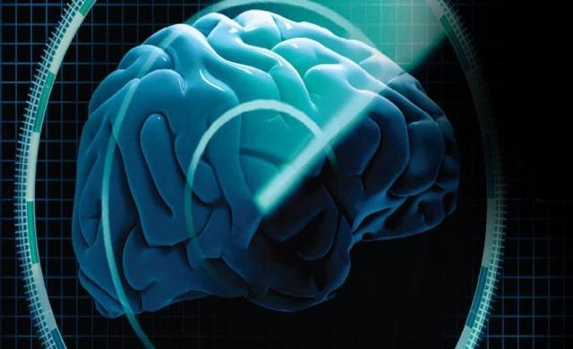 cerveau-Radar
