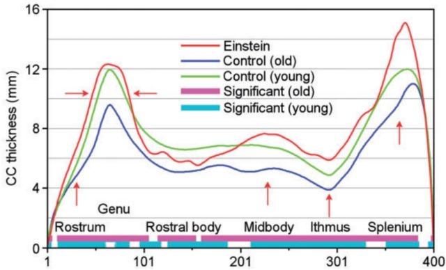Einstein-corps  calleux-Comparaison