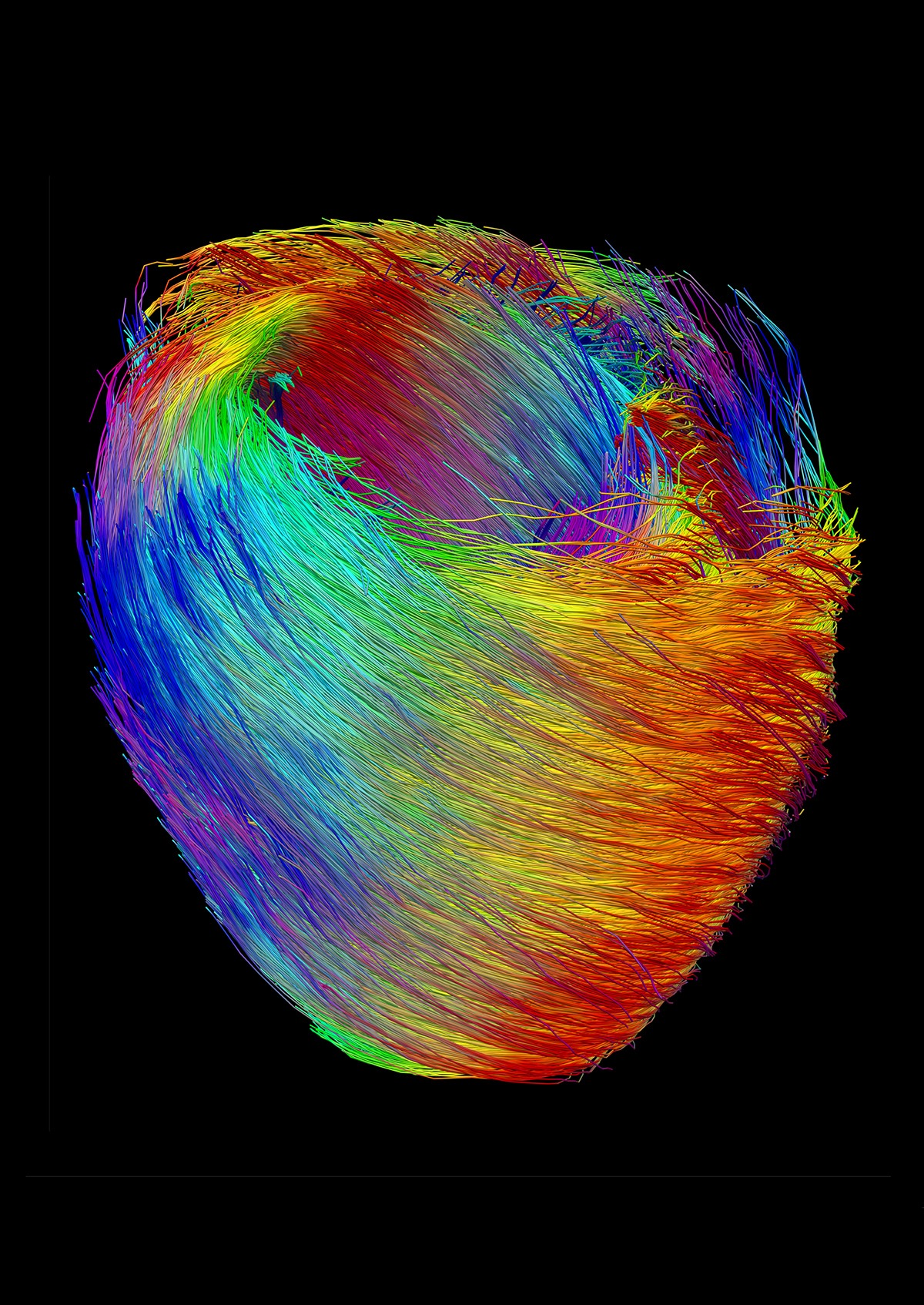 Coeur-souris-IRM-ITD.jpg
