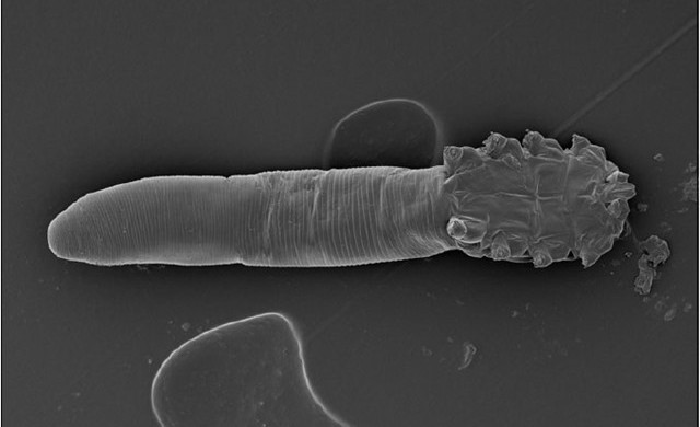 Demodex-folliculorum4_thumb.jpg