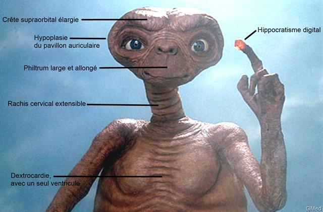 Pourquoi E.T n'était vraiment pas fait pour voyager dans l'espace ?