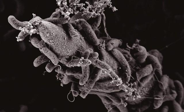 Vibrio-cholerae-chitine.jpg