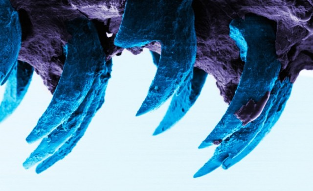 dents-patelle.jpg