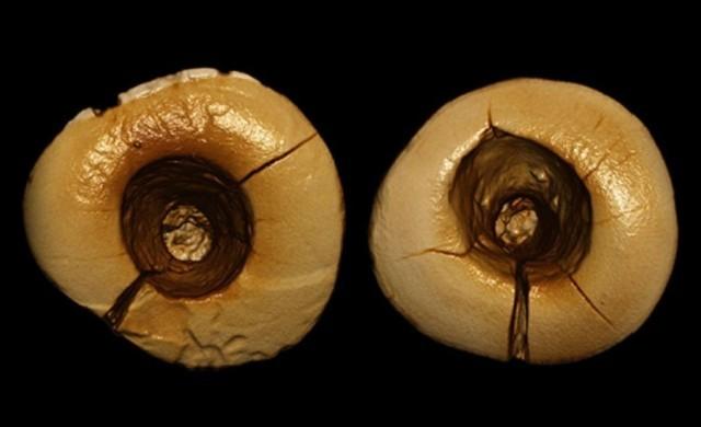 dentisterie-neolithique.jpg