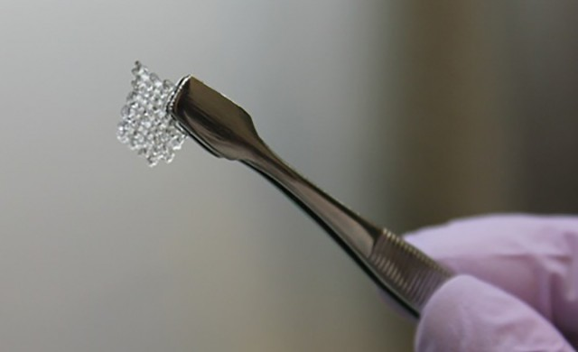 bioprosthetique-ovaire1.jpg
