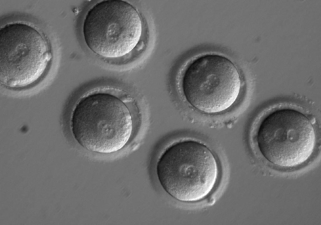 La nouvelle technique d'édition génétique utilisée pour rectifier la mutation d'un gène provoquant une mort subite