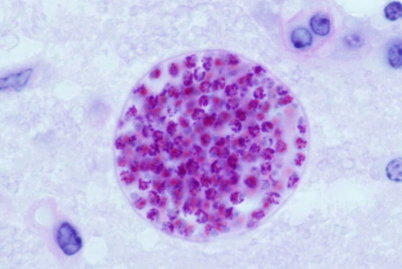 Toxoplasma_gondii_tissue_cyst_in_mouse_brain