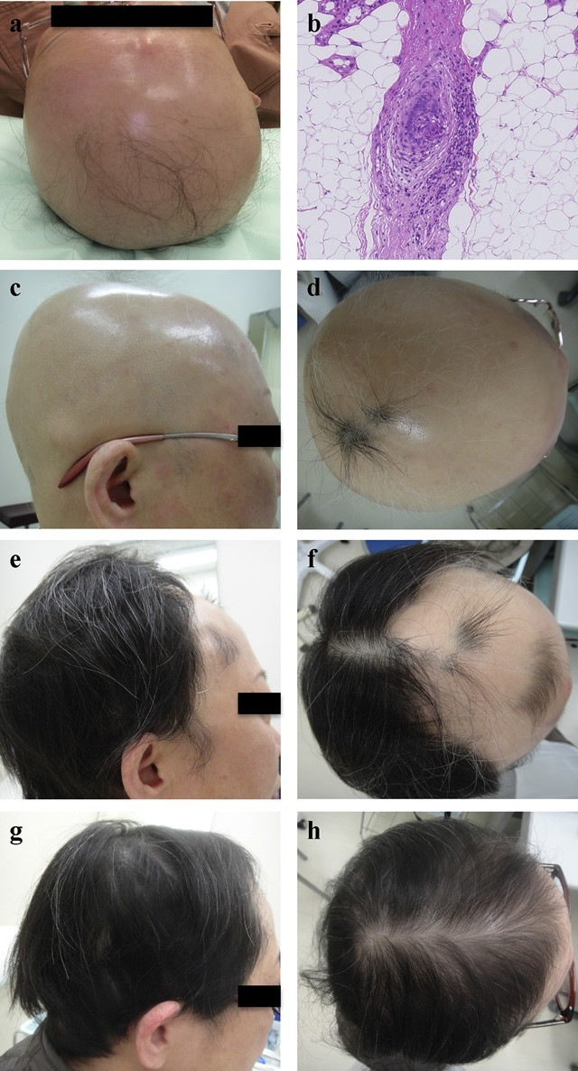 Successful treatment of refractory alopecia universalis by persuading a patient not to sleep with her dog 再投稿