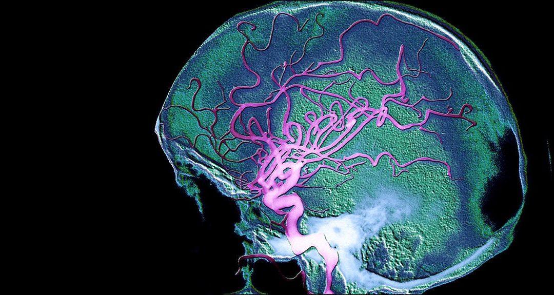 La maladie d'Alzheimer serait-elle transportée par le sang jusqu'au cerveau ?