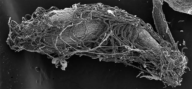 intestin-abeille17