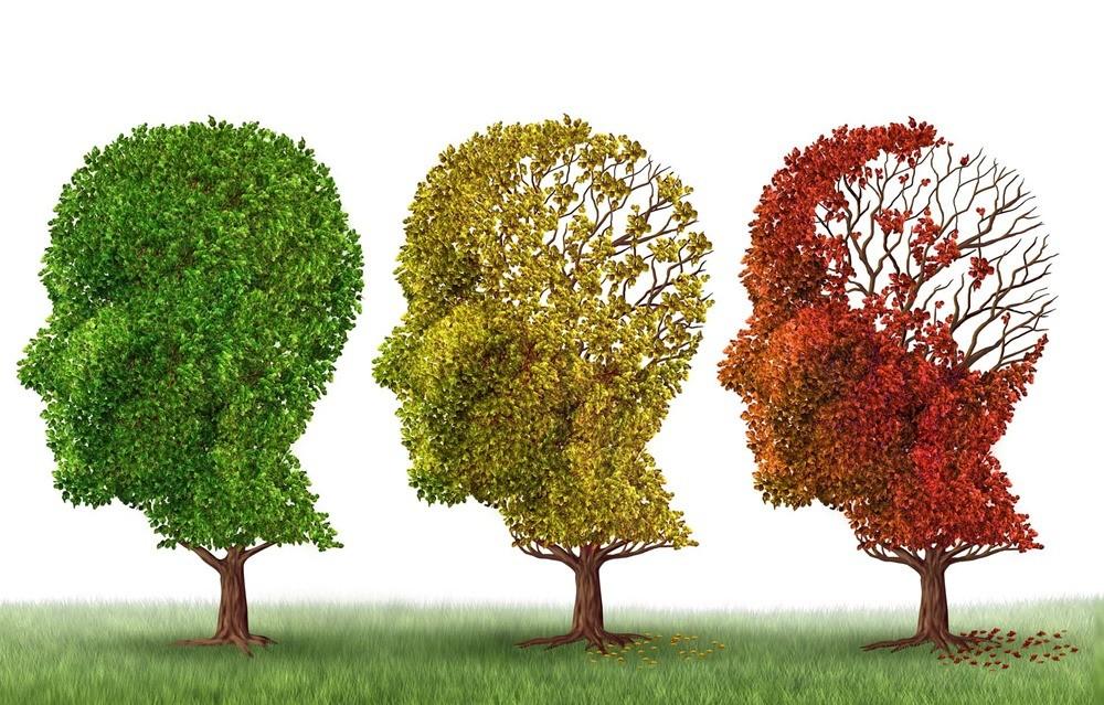 Un nouveau médicament inverse de 3 manières différentes les symptômes de la maladie d'Alzheimer… chez des souris