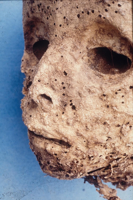 Cette momie ne présente pas le premier enfant à mourir de la variole mais plutôt de l'hépatite B