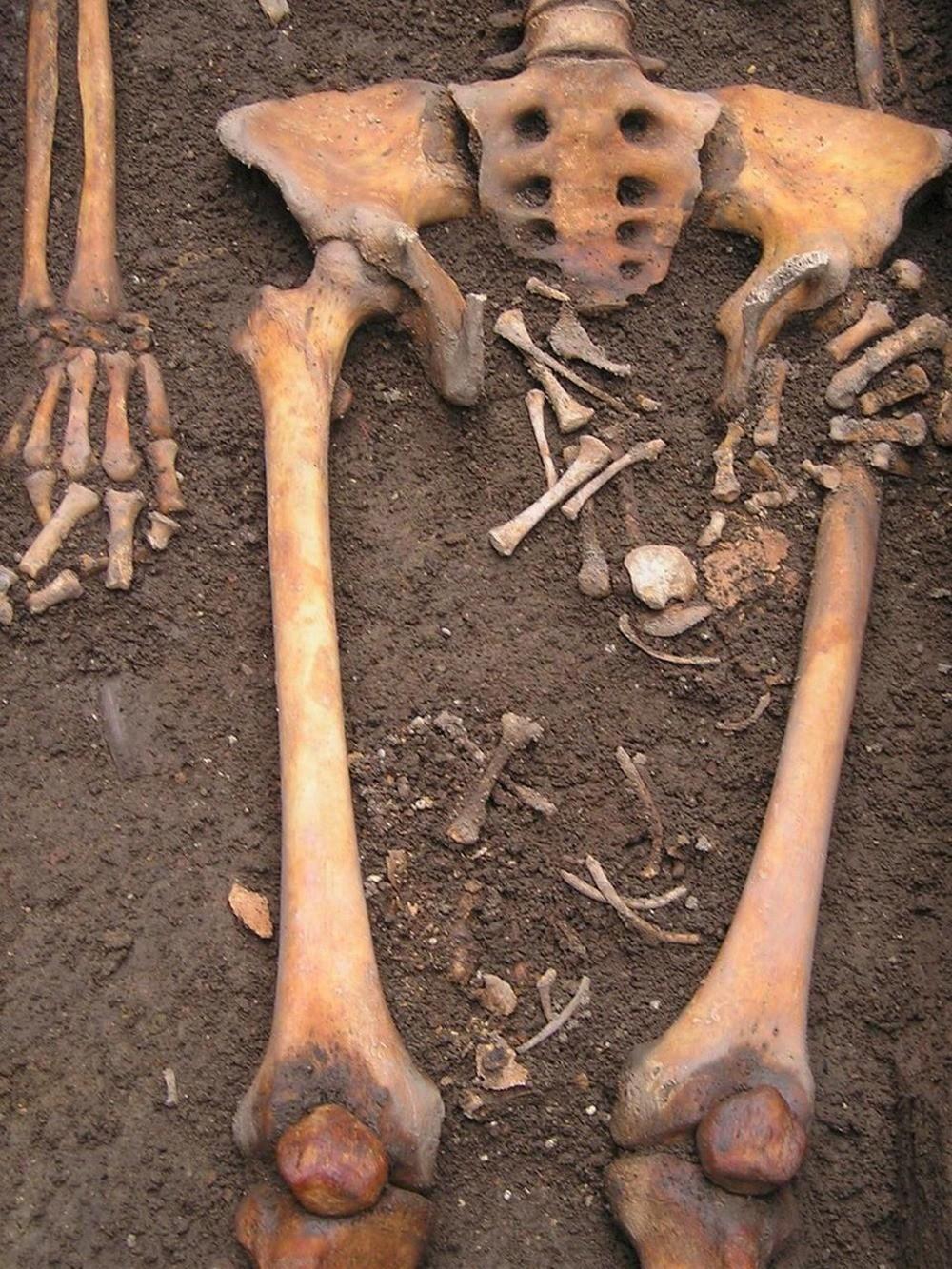 On a fait un trou dans le crâne de cette femme du moyen-âge qui a accouché dans son cercueil ! By Gurumed.org Naissance-cercueil-2_thumb